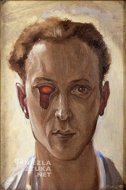 Victor Branuer, Autoportret z wydartym okiem, 1931