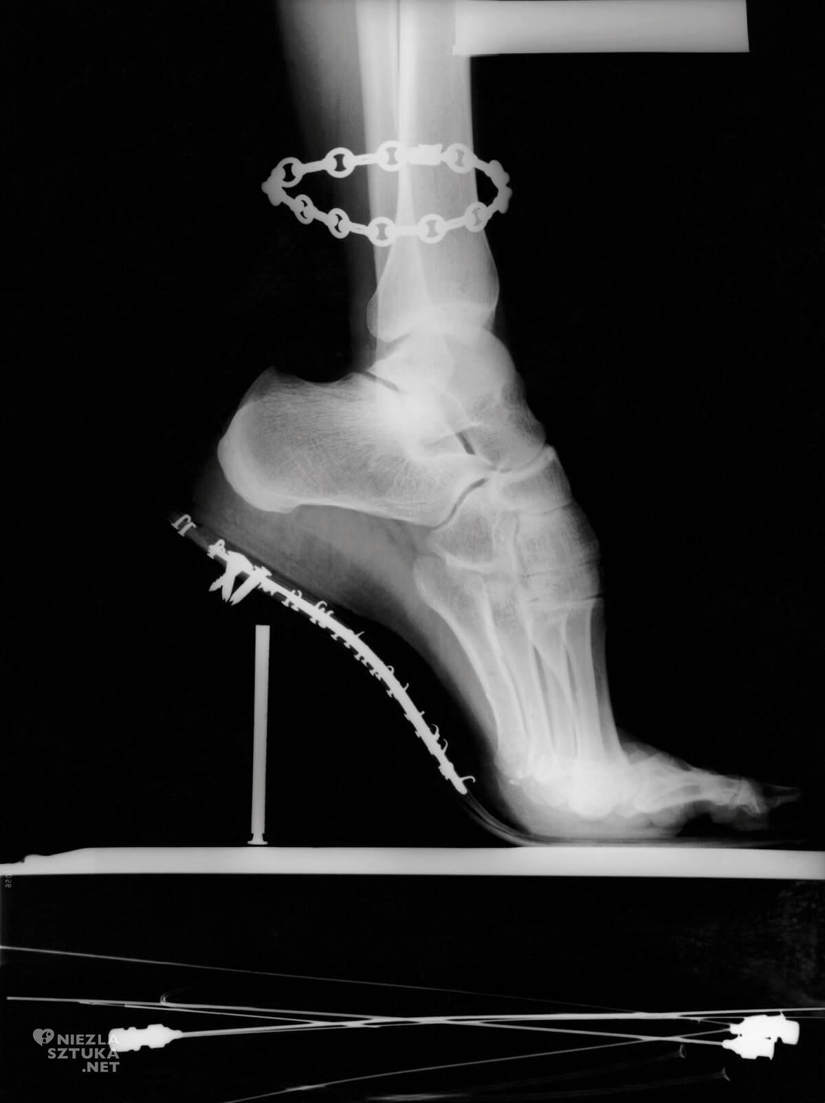 Helmut Newton, X-Ray, Vogue Paris, Niezła Sztuk